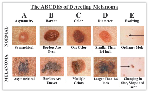ABCDEs of Detecting Melanoma