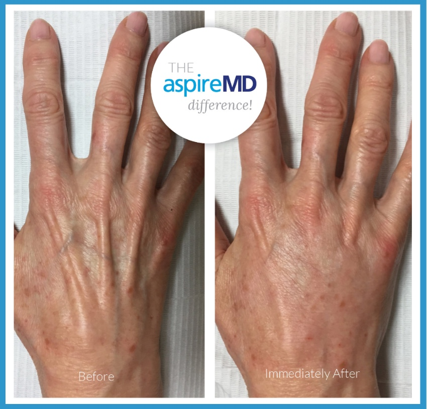 The aspireMD Difference