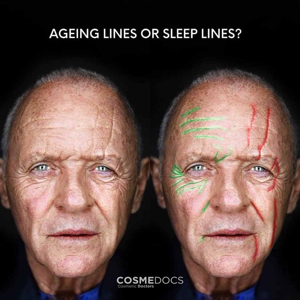 Ageing Lines or Sleep Lines