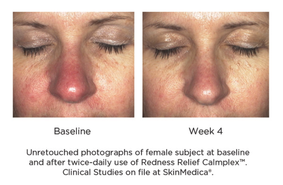 Redness Relief Calmplex Before and at Week 4