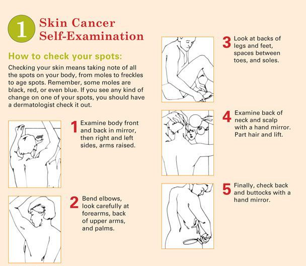Skin Cancer Self Examination