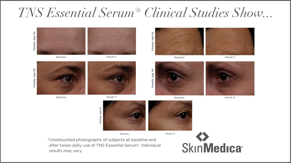 TNS Essential Serum Clinical Studies Show...